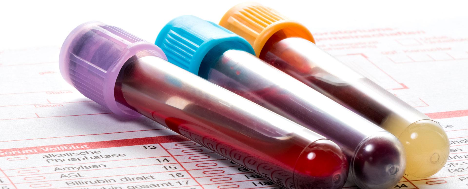 Blutproben für großes Blutbild (Differenzialblutbild)